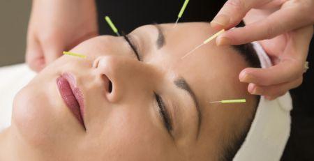 Burlington Chiro - Acupuncture Facial