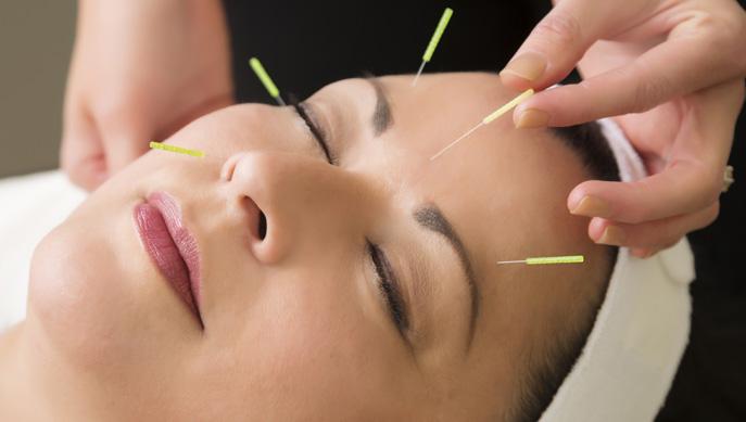 acupunture-facial